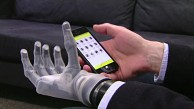i-Limb Ultra Revolution - Touch Bionics