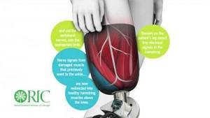 Beinprothese mit Nervensteuerung