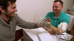 Proband mit bionischer Handprothese