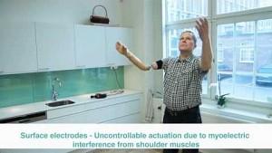 Bionische Armprothese - Chalmers University
