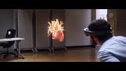 Microsoft HoloLens Partner Spotlight CWRU