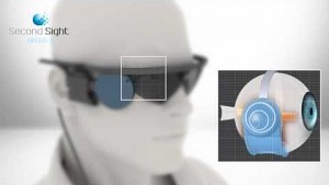 Retina-Implantat Argus II - Second Sight