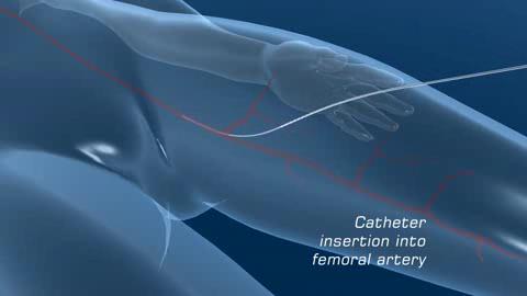 Proteus - ein Motor für Mikroroboter, die durch Adern schwimmen