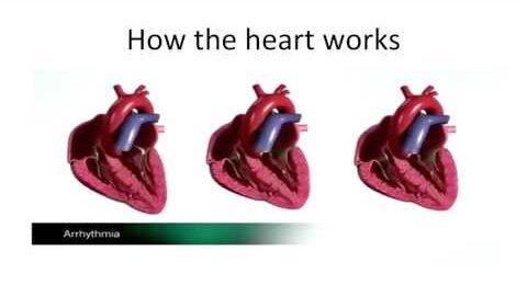 Unpatchable - Hack den Herzschrittmacher (32C3)