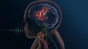 Sprache aus Gehirnsignalen synthetisieren - UCSF