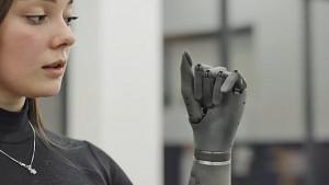 Esper Bionics künstliche Hand (Herstellervideo)