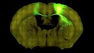 Allen Institute - Gehirnforschung - Trailer